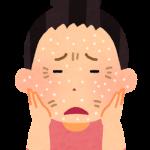 乾燥肌の粉吹き対策 改善して肌を守るためにできることとは