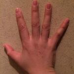 へバーデン結節の指や関節の痛みって?腫れを抑えるための治療法とは